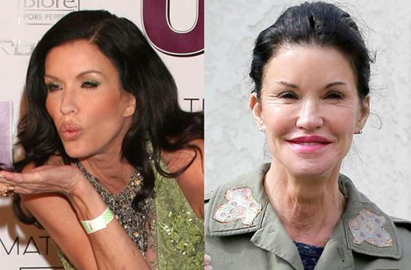 10 Celebrity Plastic Surgeries