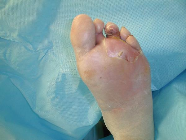 Foot Sores and Ulcers