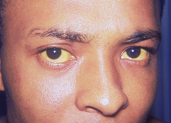 Yellow Eyes and Jaundice