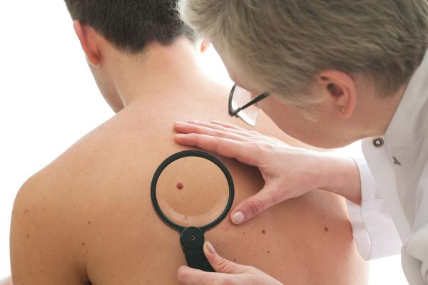Discoloration of Skin or Moles